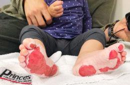 Toddler burns feet at playground