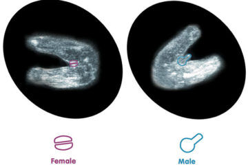 How to tell gender from 12 week ultrasound
