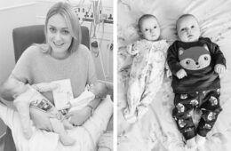 Superfetation birth story